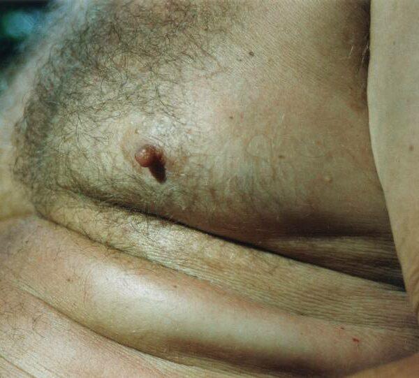 bierbauch-epd