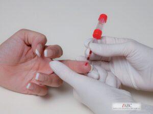vitamin-d3-test